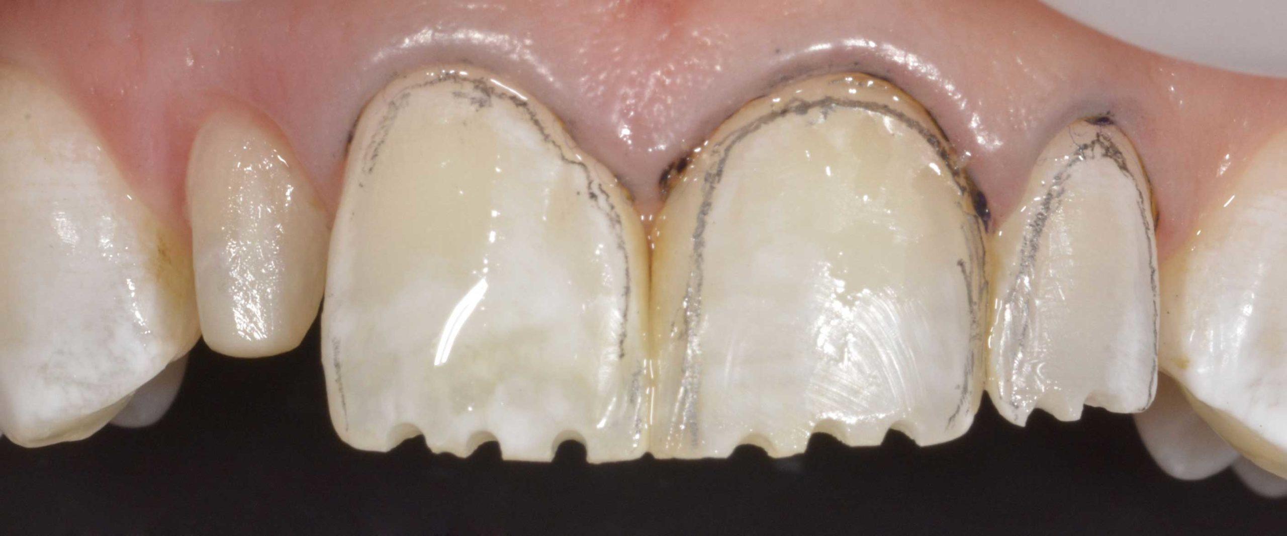 faccette dentali preparazione 1920X800 scaled Faccette Dentali 2