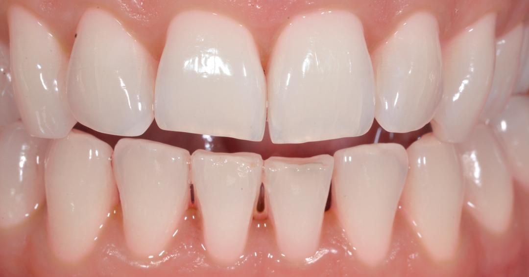 sbiancamento professionale dopo Sbiancamento Dentale 2