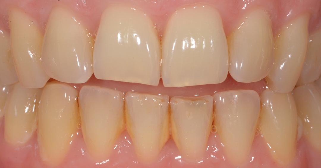 sbiancamento professionale prima Sbiancamento Dentale 1