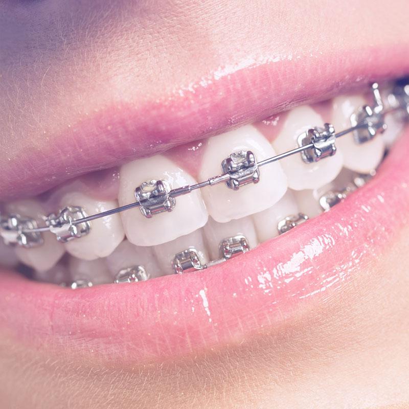 ortodonzia placche metallo 800x800 1 Trattamenti Odontoiatrici 7