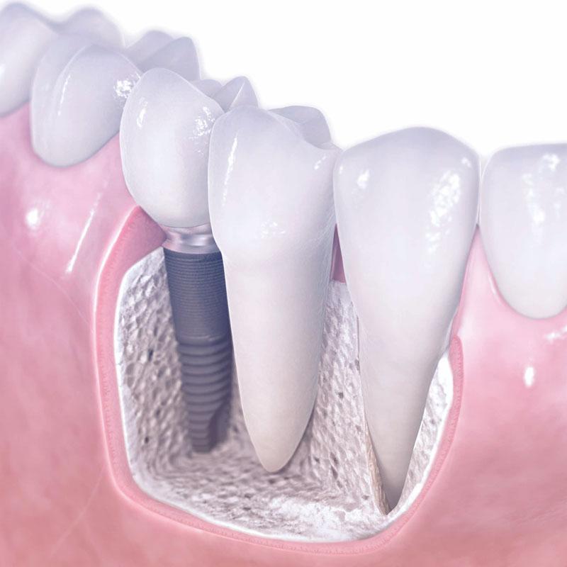 protesi dentale fissa 800x800 1 Trattamenti Odontoiatrici 3